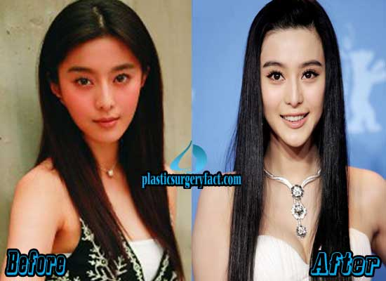 Fan Bingbing Plastic Surgery Before and After