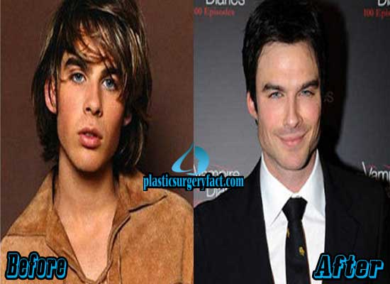 Ian Somerhalder Before and After Plastic Surgery