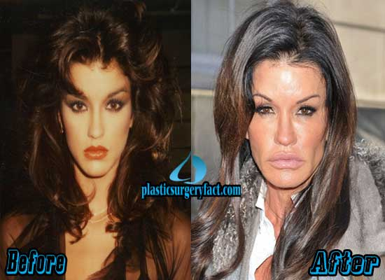 Janice Dickinson Plastic Surgery Pictures
