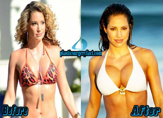 Jennifer Nicole Lee Breast Augmentation