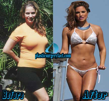 Jennifer Nicole Lee Liposuction Before and After