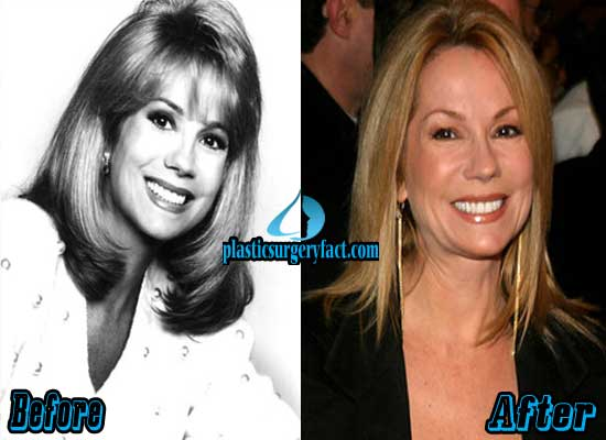 Kathie Lee Gifford Nose Job Before and After