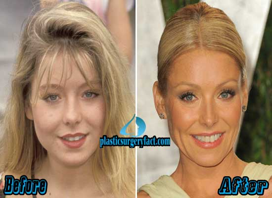 Kelly Ripa Plastic Surgery Before and After