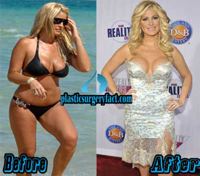 Kim Zolciak Boob Job Before and After