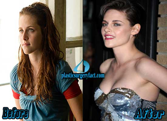 Kristen Stewart Breast Implants Before and After