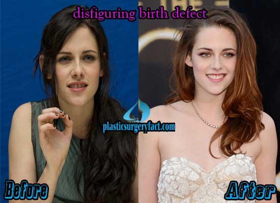 Kristen Stewart Plastic Surgery Face