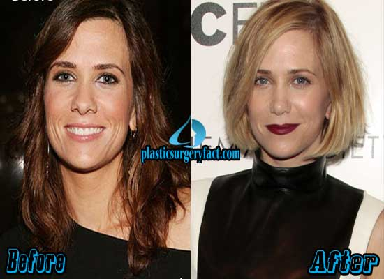 Kristen Wiig Nose Job Before and After
