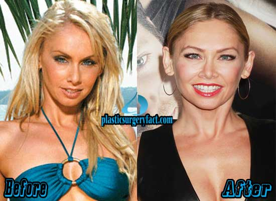 Kym Johnson Before and After Plastic Surgery
