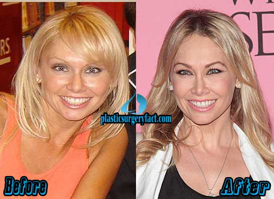 Kym Johnson Plastic Surgery Before and After