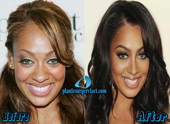 Lala Vasquez Nose Job Before and After