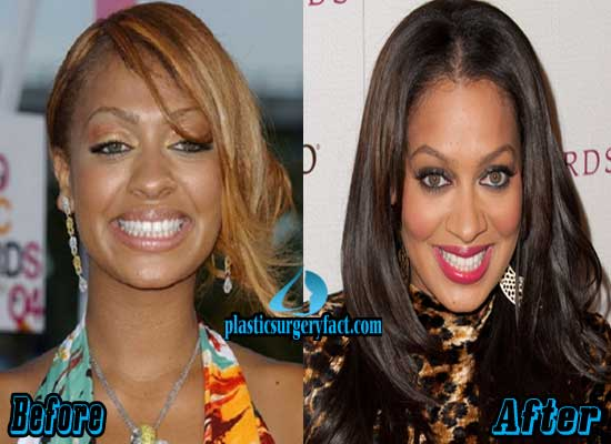 Lala Vasquez Plastic Surgery Before and After