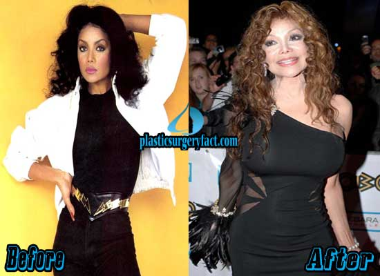 Latoya Jackson Breast Implants Before and After