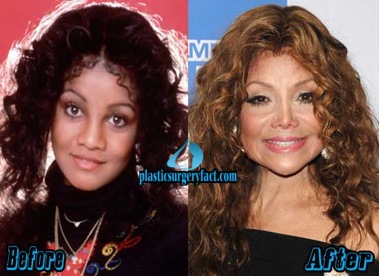 Latoya Jackson Nose Job Before and After