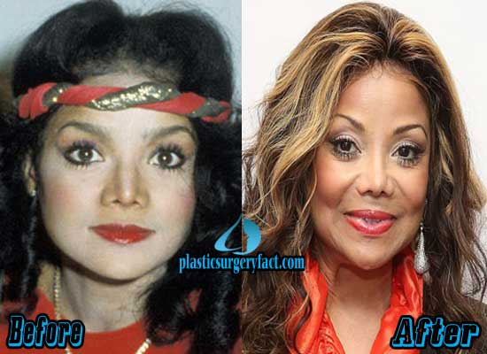 Latoya Jackson Plastic Surgery Before and After