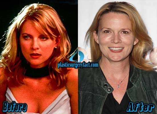 Laurel Holloman Plastic Surgery Before and After