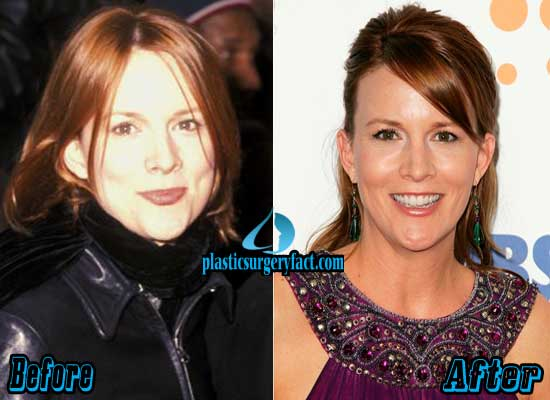 Laurel Holloman Plastic Surgery Face
