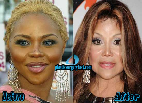 Lil Kim Before And After Plastic Surgery Pictures