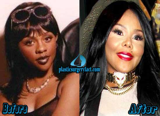Lil Kim Nose Job Before And After Pictures