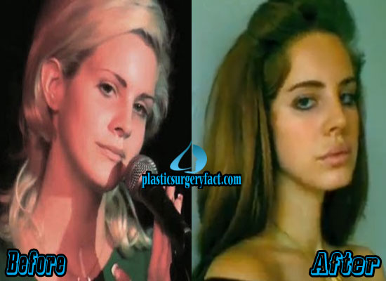 Lizzy Grant Lips Filler Injection Before and After