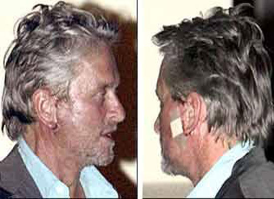 Michael Douglas Plastic Surgery Face