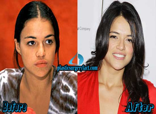 Michelle Rodriguez Plastic Surgery Before and After