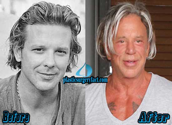 Mickey Rourke Plastic Surgery Face