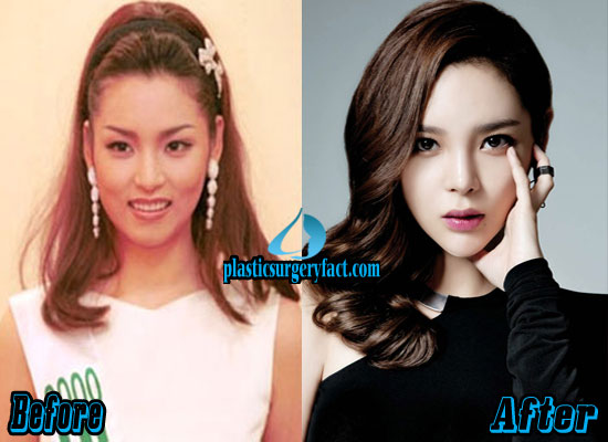 Park Si Yeon Nose Job Before and After