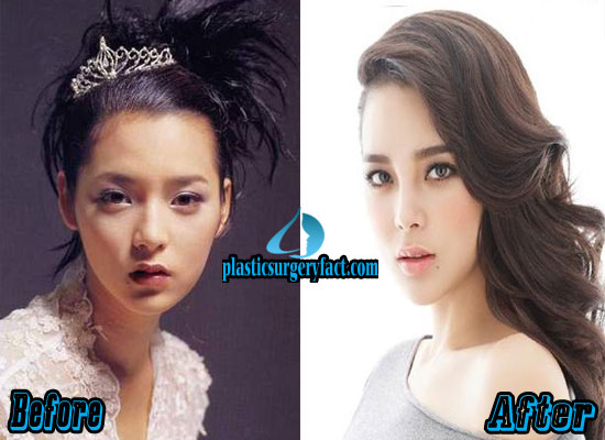 Park Si Yeon Plastic Surgery Before and After