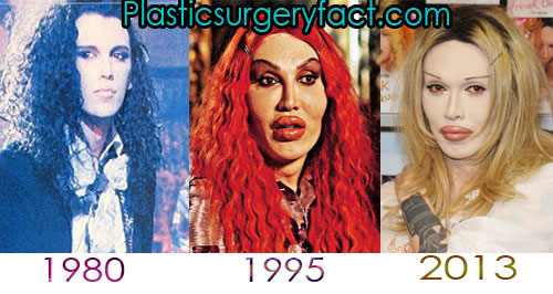 Pete Burns Plastic Surgery Pictures
