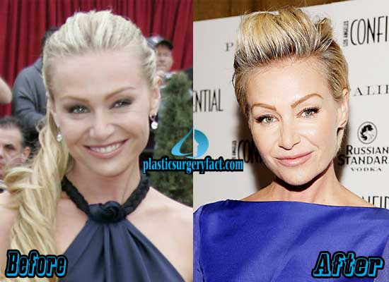Portia de Rossi Nose Job Before and After