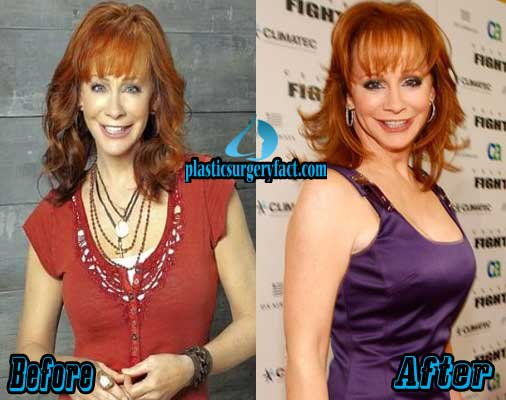 Reba McEntire Breast Augmentation Before and After