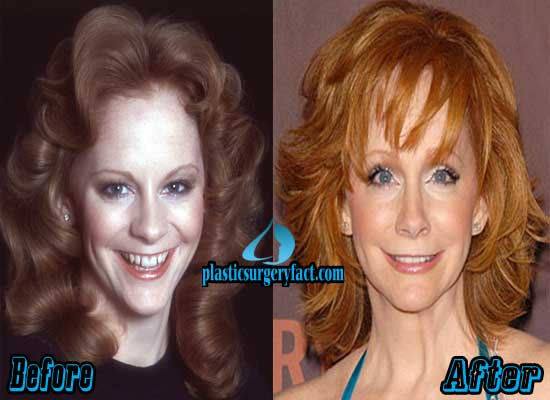 Reba McEntire Nose Job Before and After