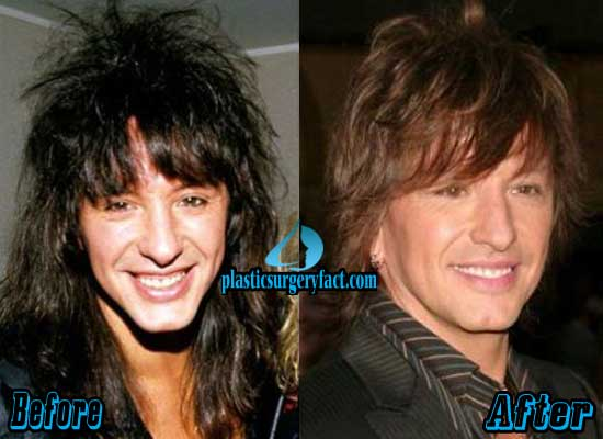 Richie Sambora Before and After Plastic Surgery