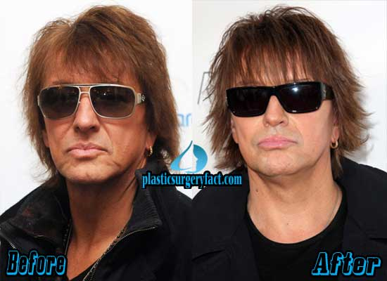 Richie Sambora Plastic Surgery Before and After