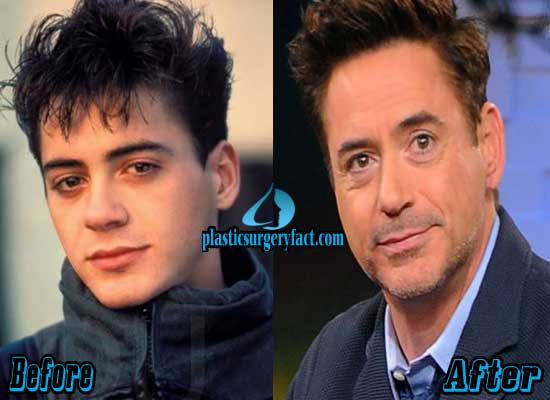 Robert Downey Jr Plastic Surgery Before and After
