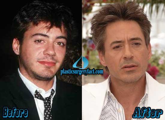 Robert Downey Jr Plastic Surgery Pictures