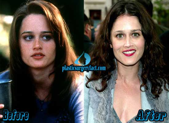 Robin Tunney Plastic Surgery Before and After