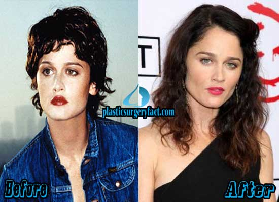Robin Tunney Plastic Surgery Face