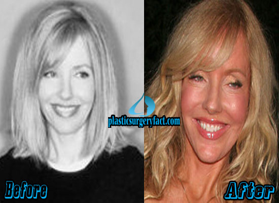 Shelby Chong Before and After Plastic Surgery