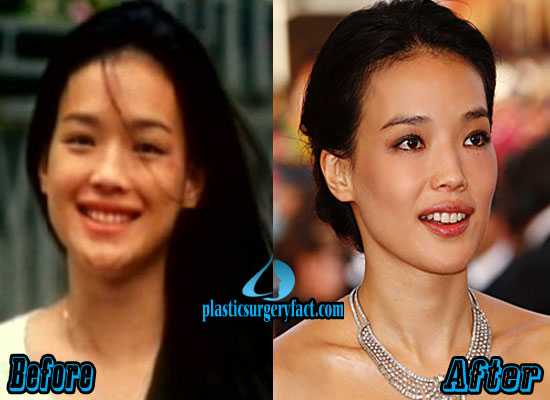 Shu Qi Nose Job Before and After