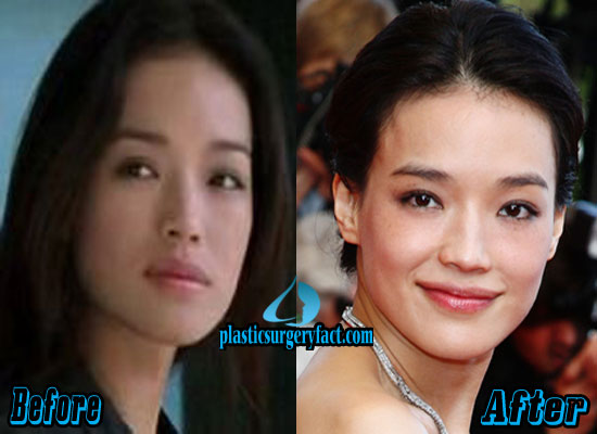 Shu Qi Plastic Surgery Before and After