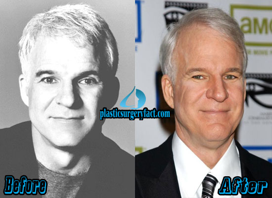 Steve Martin Plastic Surgery Before and After