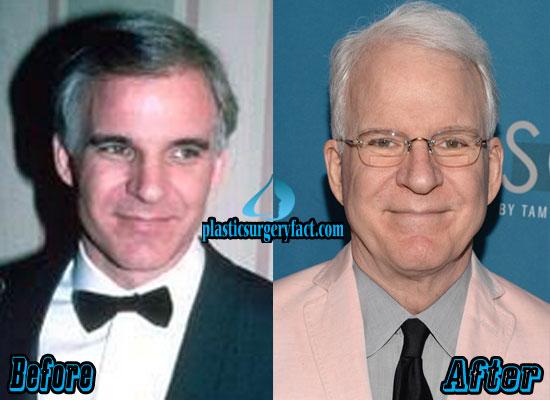 Steve Martin Plastic Surgery Face