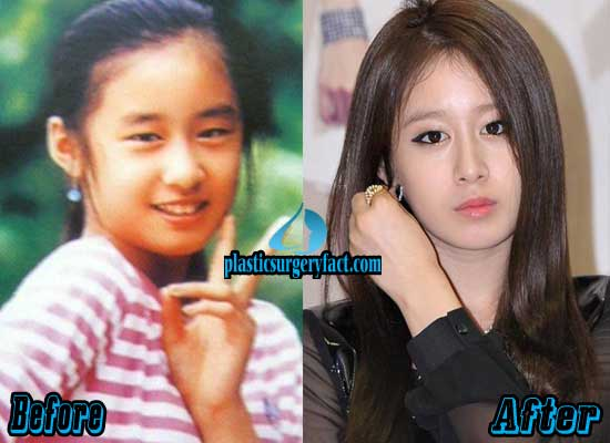 T-ara Jiyeon Before and After Plastic Surgery