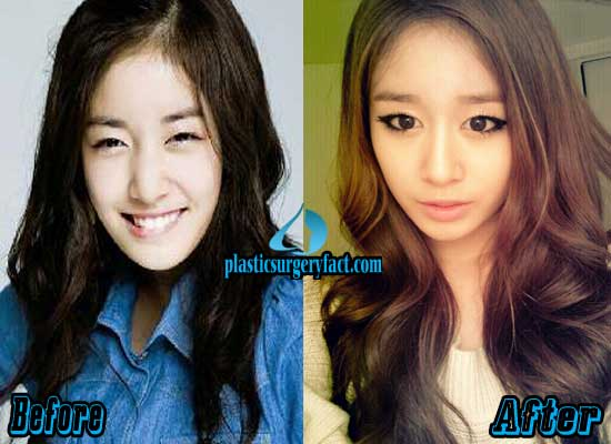 T-ara Jiyeon Plastic Surgery Before and After
