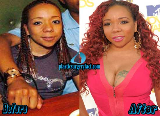 Ti Wife Breast Implants Before and After
