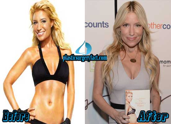 Tracy Anderson Breast Augmentation Before and After