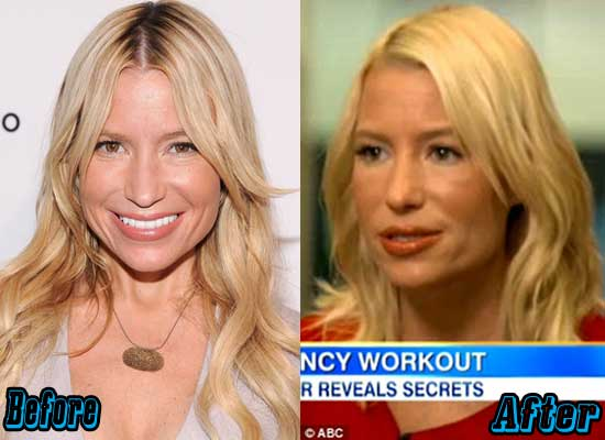 Tracy Anderson Plastic Surgery Before and After