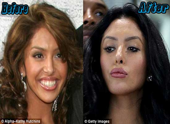 Vanessa Bryant Nose Job Before and After