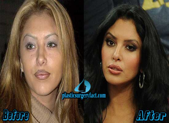 Vanessa Bryant Plastic Surgery Before and After